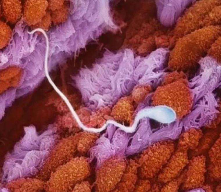 These Pictures Of Inside A Woman's Womb Will Fascinate You To Say The Least