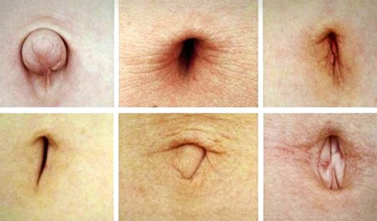 We Can Tell You About Your Health And Personality Just By Looking At Your Belly Button.