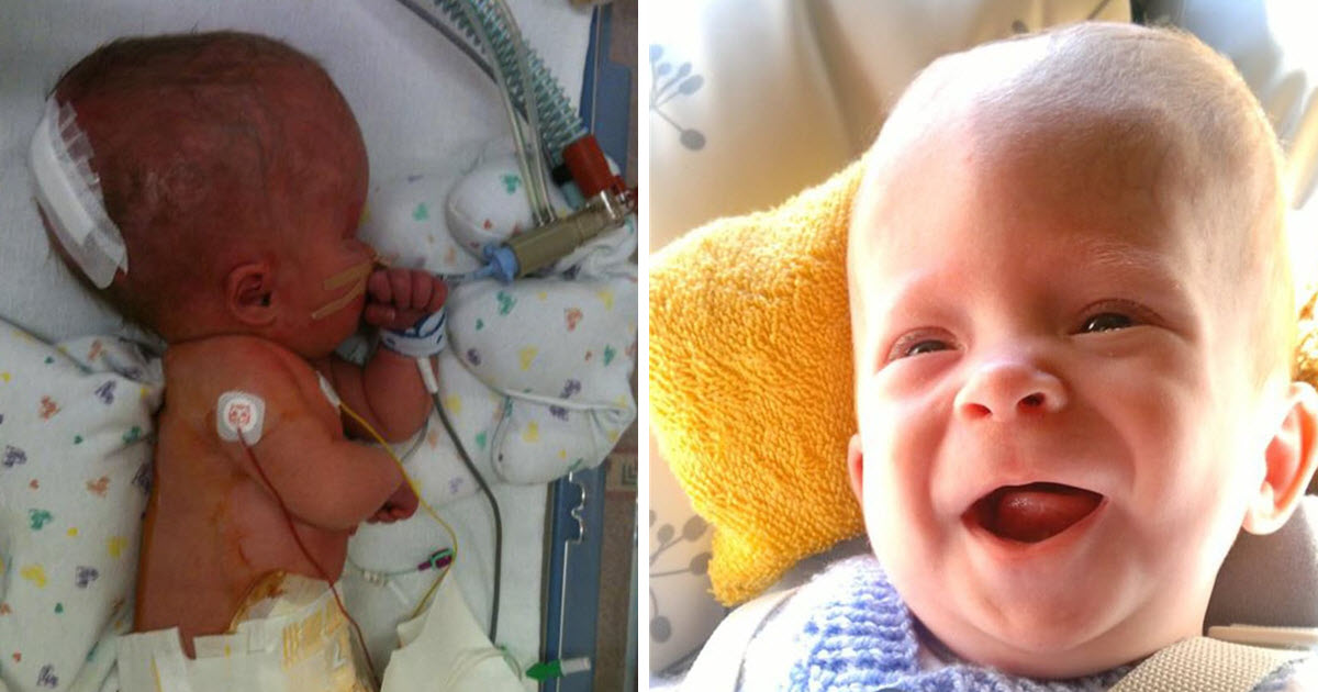 Miracles Do Exist Baby Born With A Brain Survives.