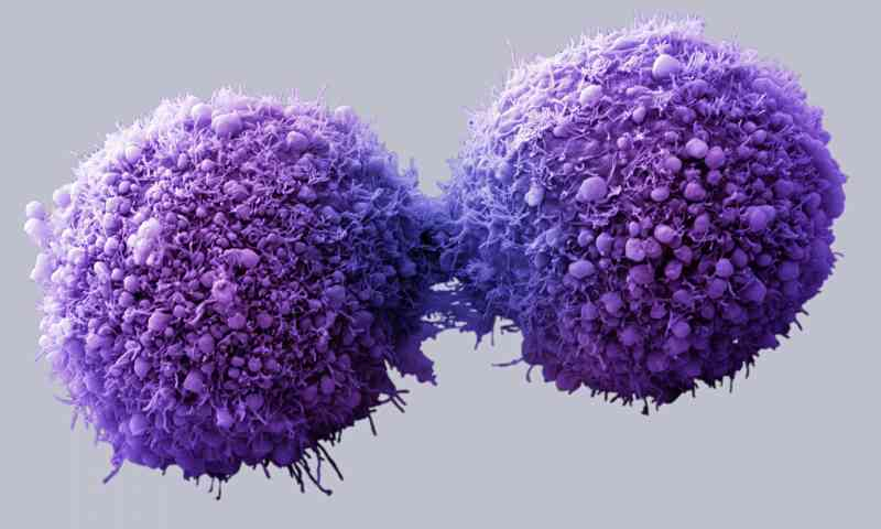 Scientists From Amsterdam Have Come Up With An Alternate For Breast Cancer And It Destroys Cancer Tumors In Only 11 Days