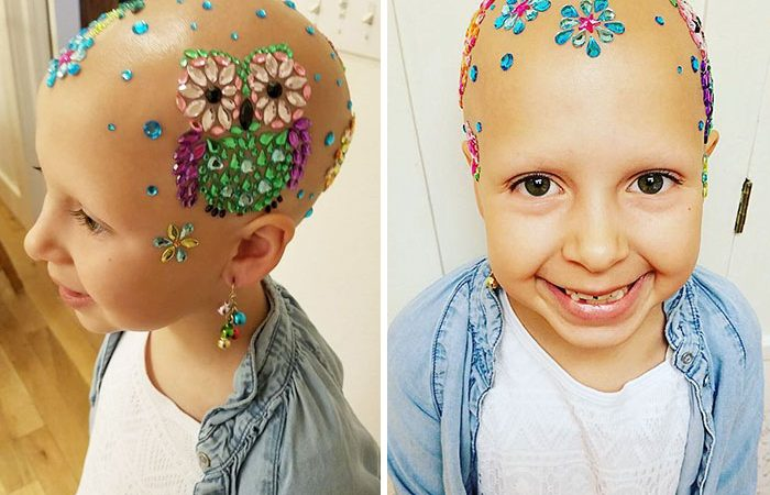 Alopecia Didn't Stop This Young Girl From Having Fun At School!