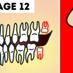 Is There Really Need Of Removing Our Wisdom Teeth?